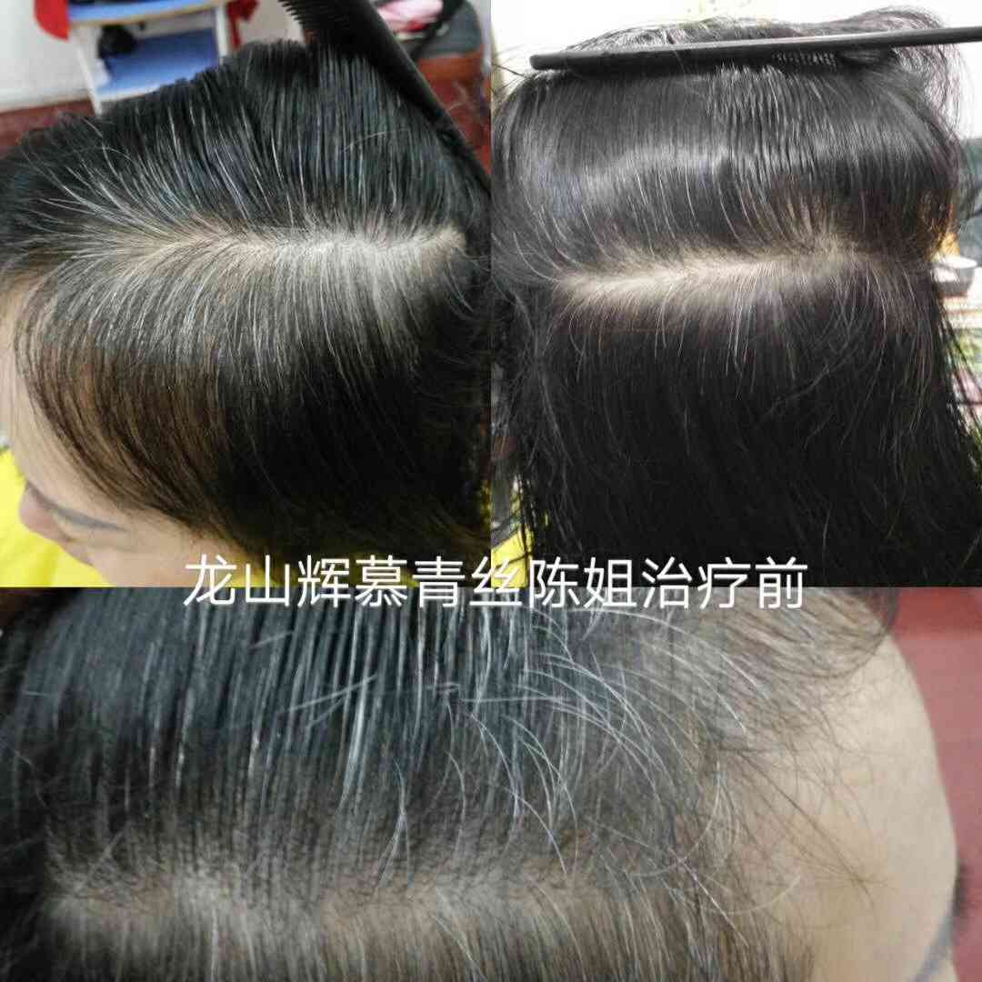 http://www.beautyfox2014.com/meihu/consumable/image/1509699909204.jpg