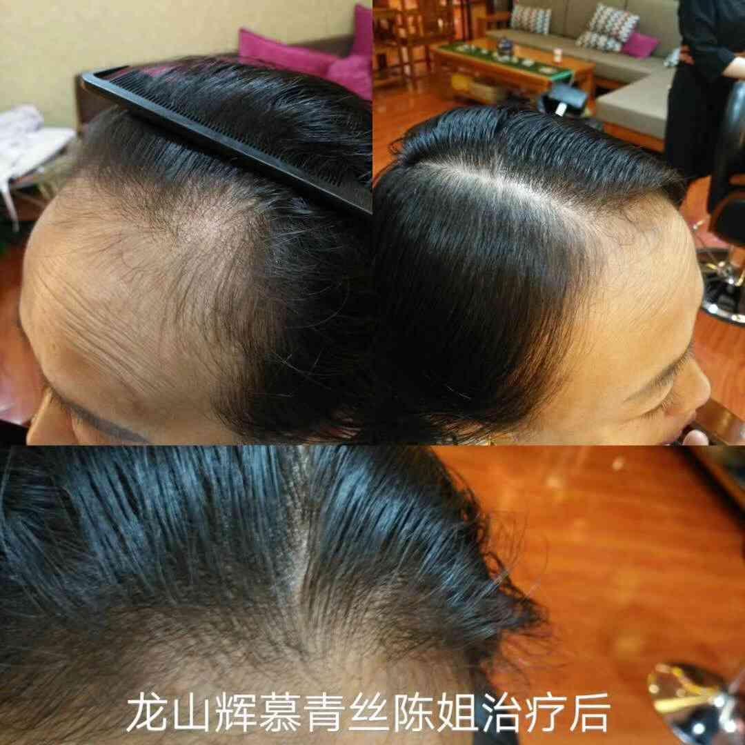 http://www.beautyfox2014.com/meihu/consumable/image/1509699922644.jpg